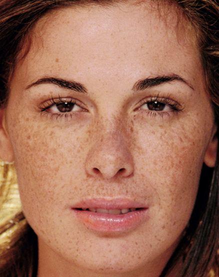 Il pigmentary nota su una faccia la Wikipedia